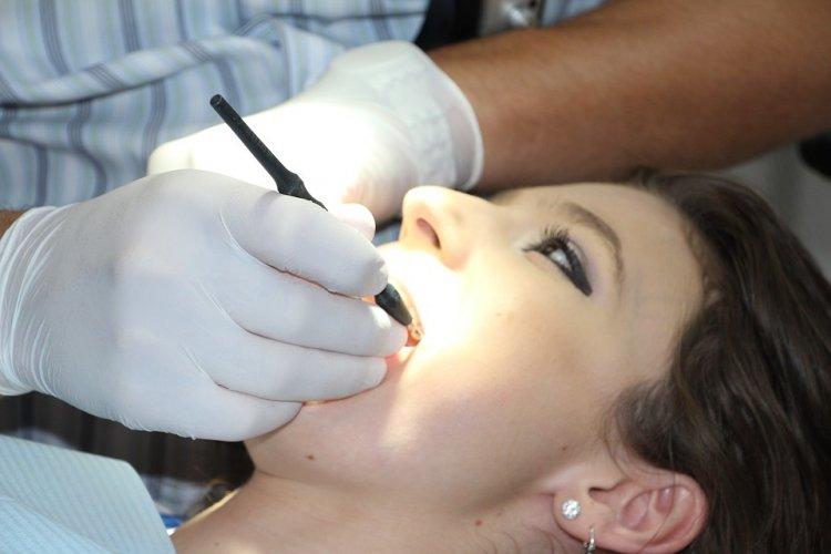 Врачи рассказали, как спасти зубы от желтизны