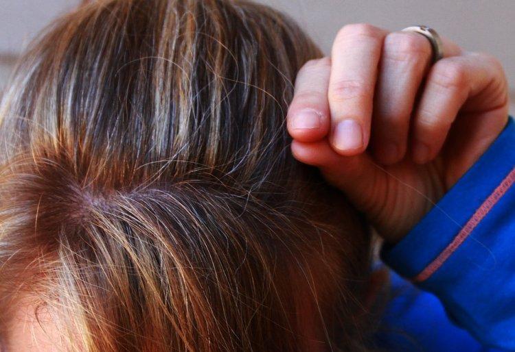 Врачи: раннее появление седины - маркер сильного стресса