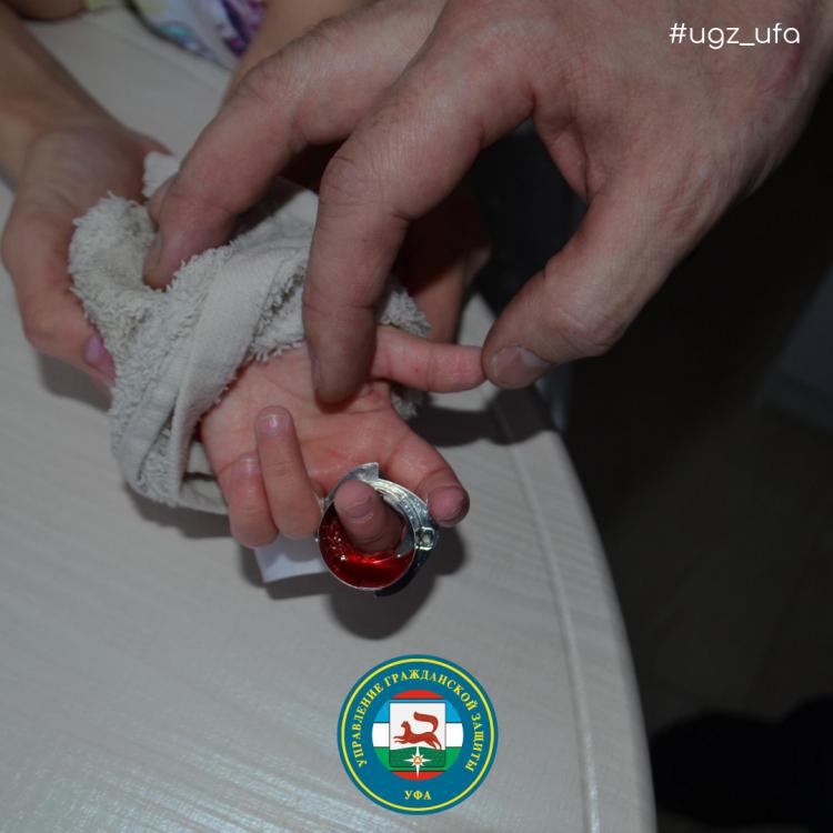 В Башкирии спасатели оказали помощь 2-годовалой девочке