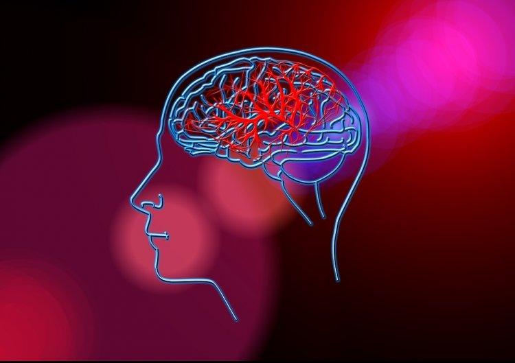 О чем предупреждает ваш мозг: 10 признаков того, что инсульт близок