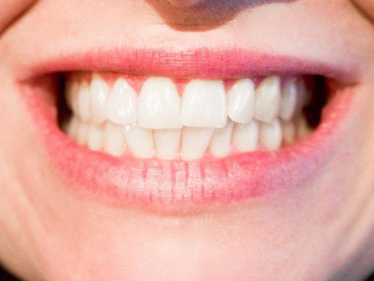 Кривые зубы - смертельно опасны: медики объяснили, почему