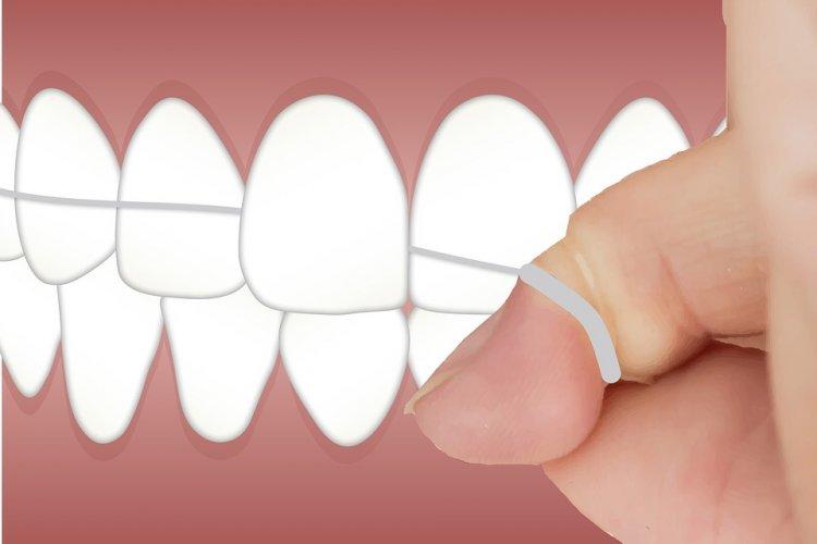 Медики: зубная нить опасна для здоровья