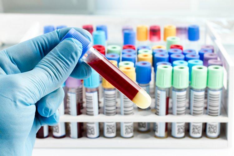 Ученые рассказали о «золотой» группе крови
