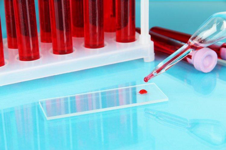 Китайские медработники  назвали группу крови, более  подверженную COVID
