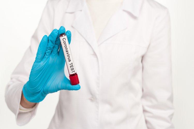 Как определить переболевшего коронавирусом, подсказали врачи