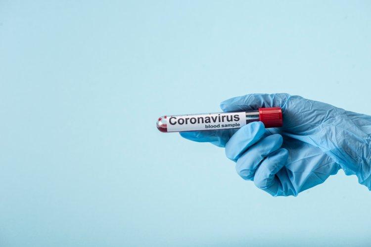 Пресс-секретарь президента РФ Дмитрий Песков заболел коронавирусом