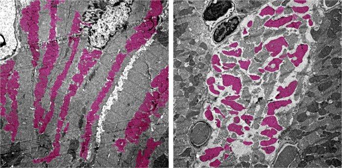 Как SARS-CoV-2 может вызвать отказ внутренних органов показали на экспериментальной модели мыши