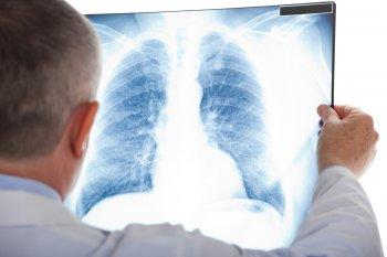 Девять симптомов рака легких у человека названы британскими врачами