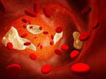 Express: Изменения на лице у человека могут указывать на высокий уровень холестерина